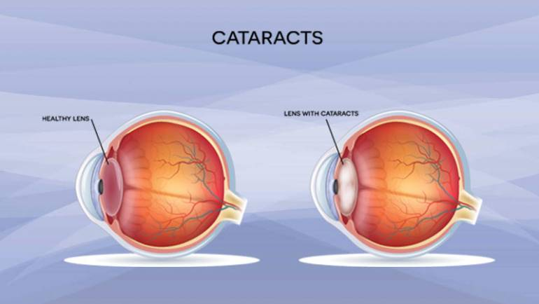Cataracts- what exactly is it?